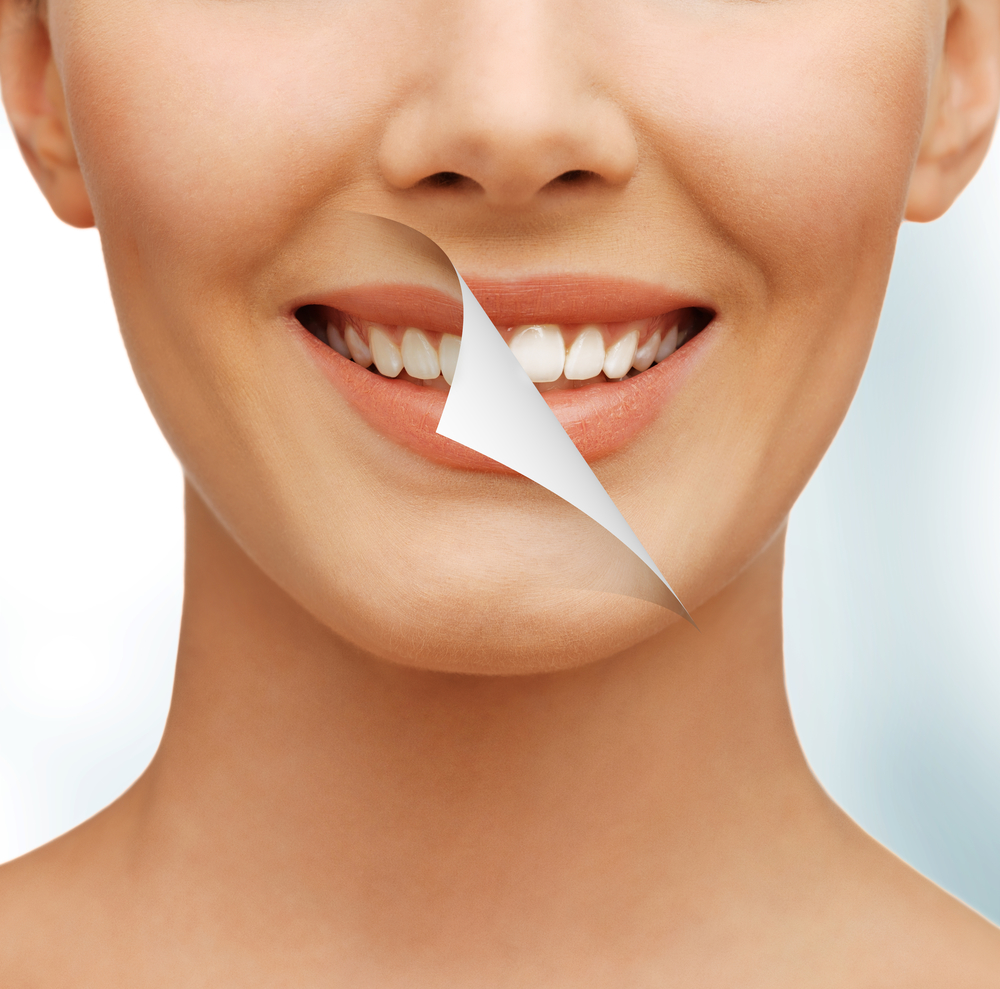 What are the benefits of teeth whitening in Vero beach?