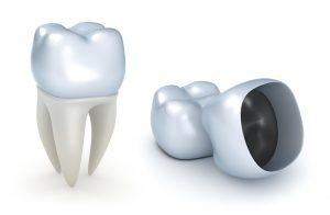 Where can I get a dental crown in Vero beach?