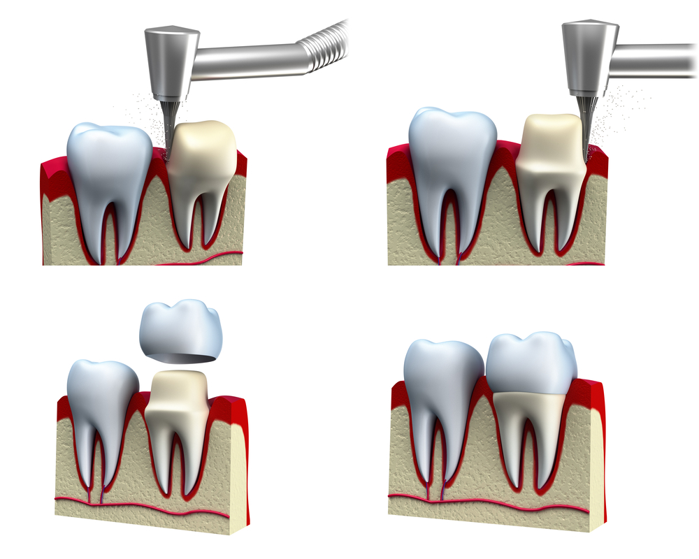 Who offers the best dental crown in Vero beach?
