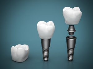 Where can I get Vero beach dental implants?