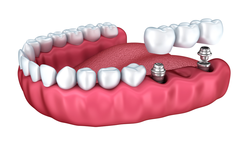Who offers Vero beach dental implants?