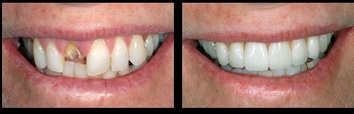 Dental-Implants-Before-and-After-Image
