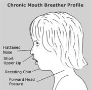 mouth breathing diagram