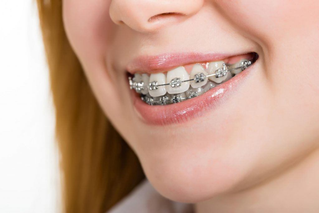 where is the best orthodontist vero beach?