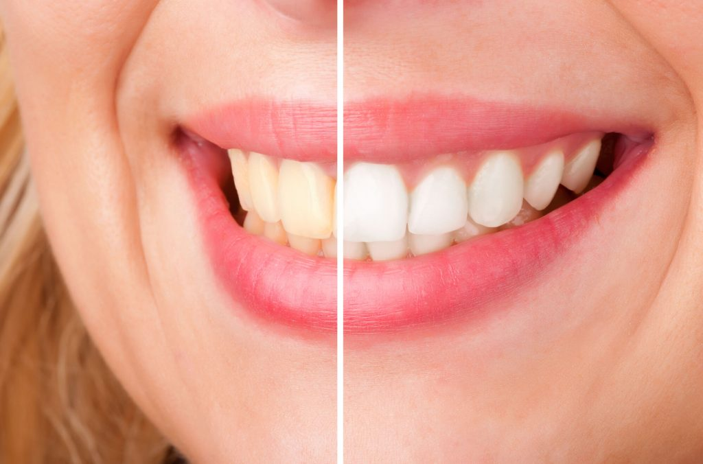 Where should I get Teeth Whitening Vero Beach?