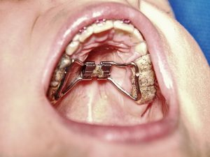 What is Expansion orthodontics?