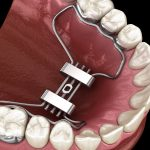 What is Airway Driven Orthodontic Expansion?